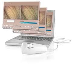 computer-hautanalyse